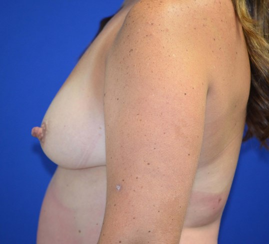 Breast augmentation Lateral Before