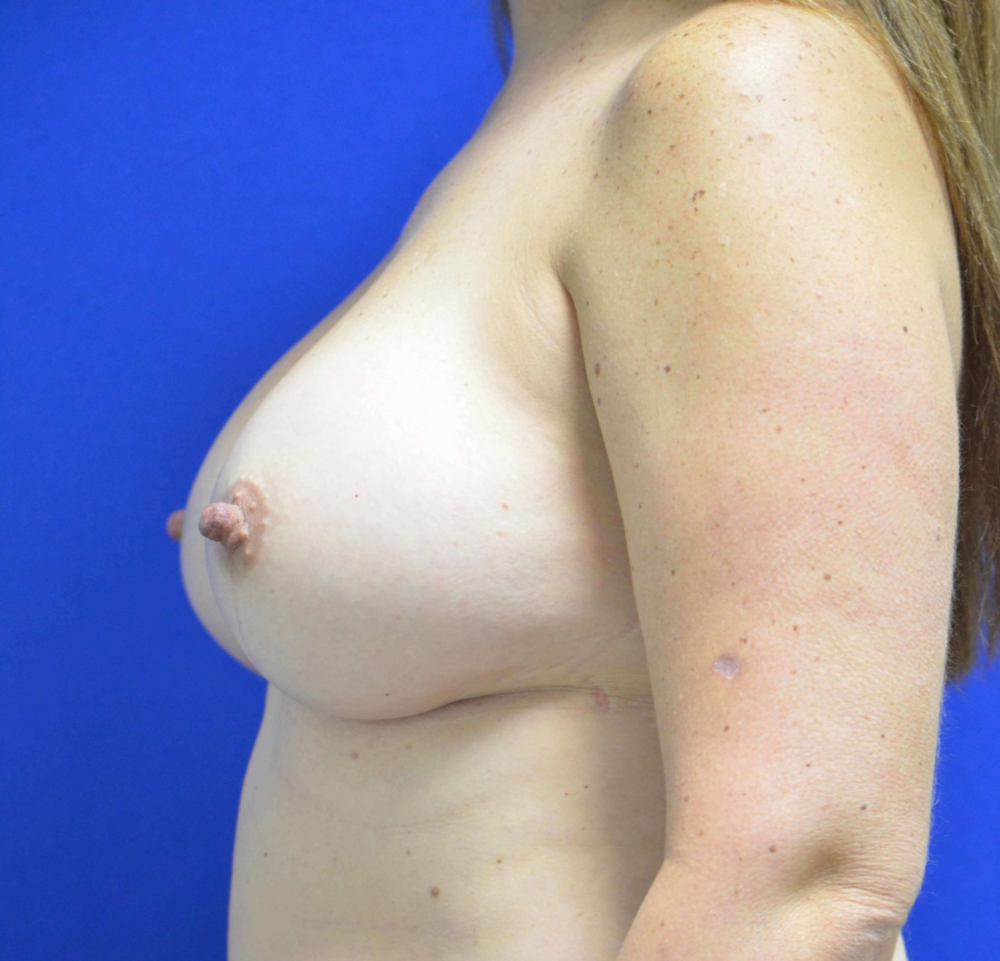 Breast augmentation Lateral After