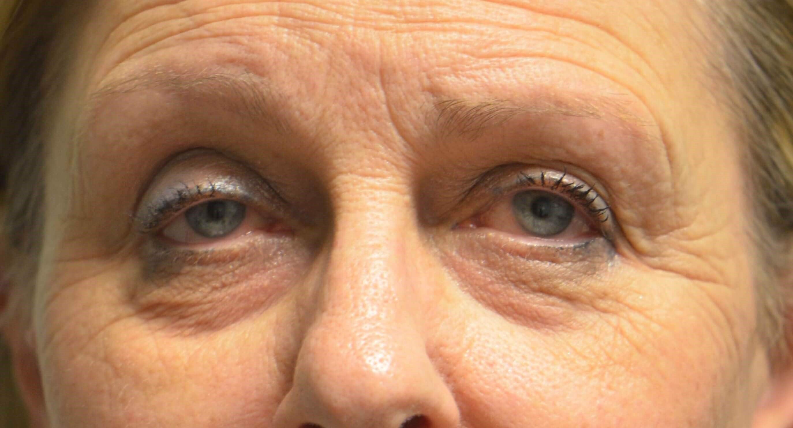 Blepharplasty Ptosis Repair Before