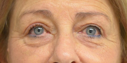 Blepharplasty Ptosis Repair After
