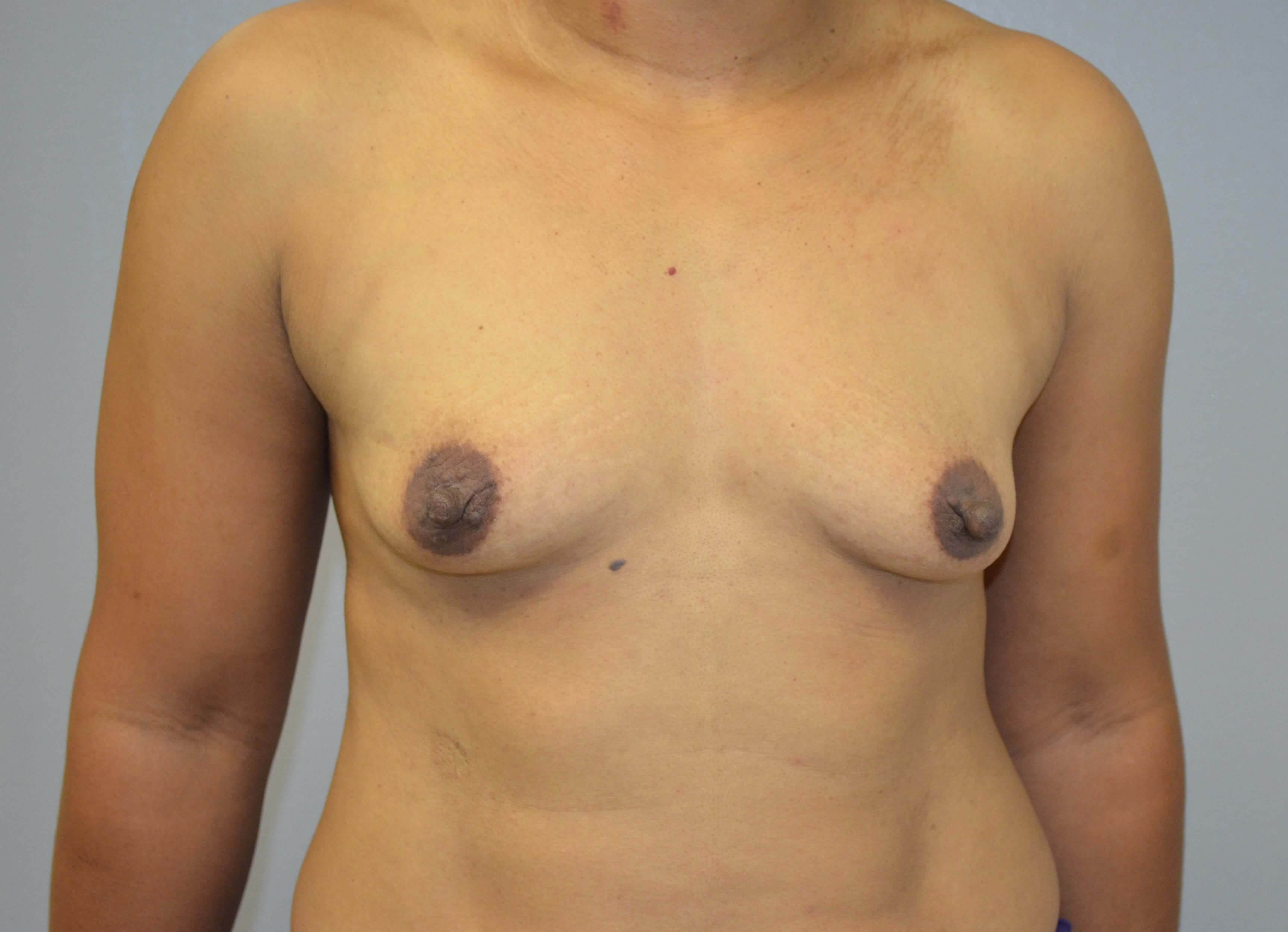 Breast Augmentation in Austin Before Front View