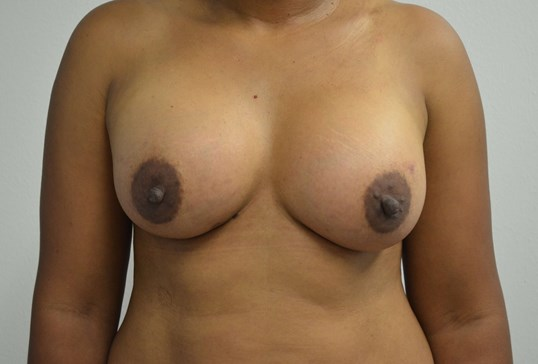 Breast Augmentation in Austin After Front View