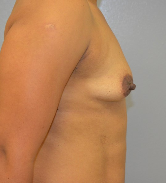 Breast Augmentation in Austin Before Lateral View 1