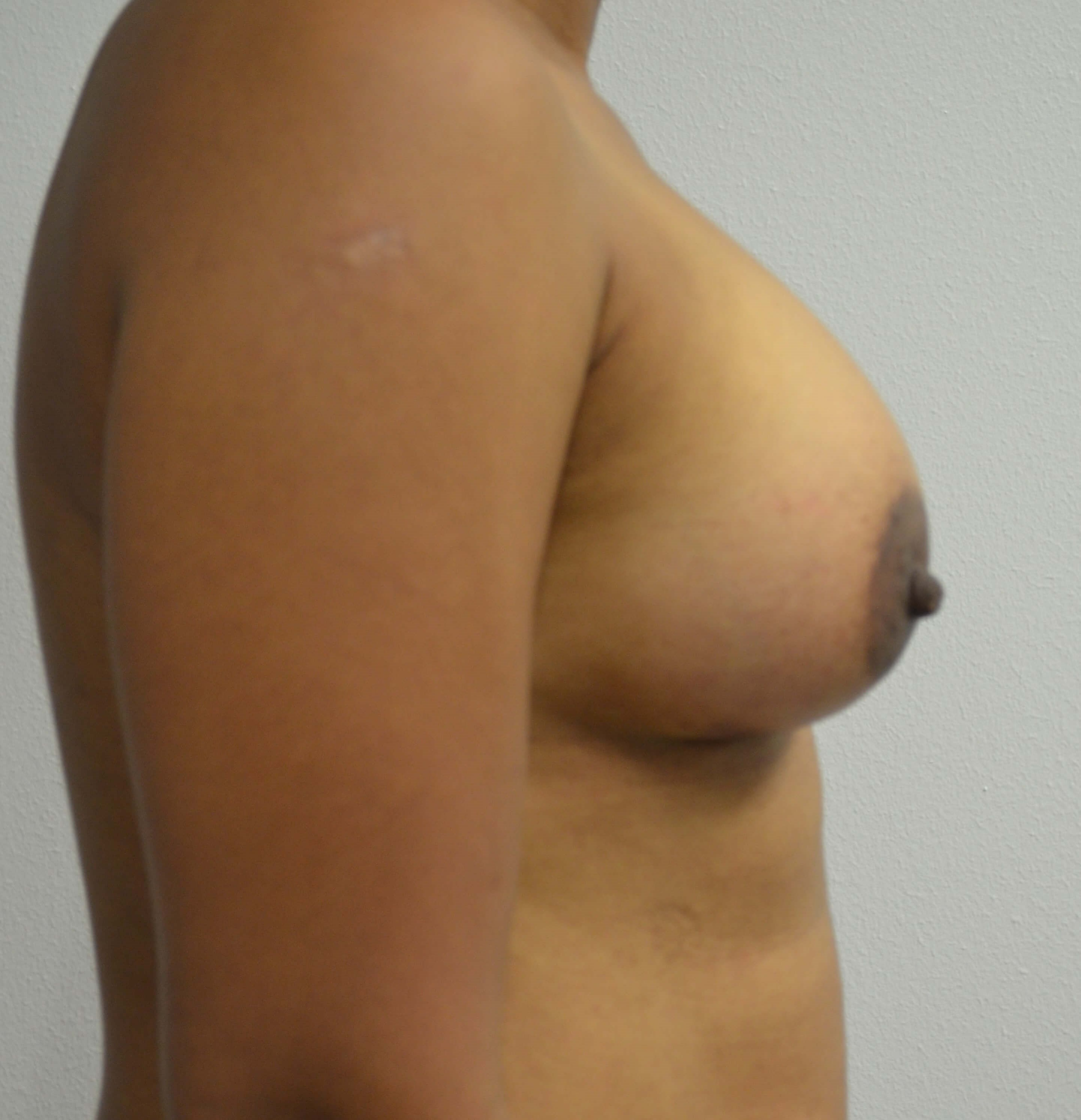 Breast Augmentation in Austin After Lateral View 1