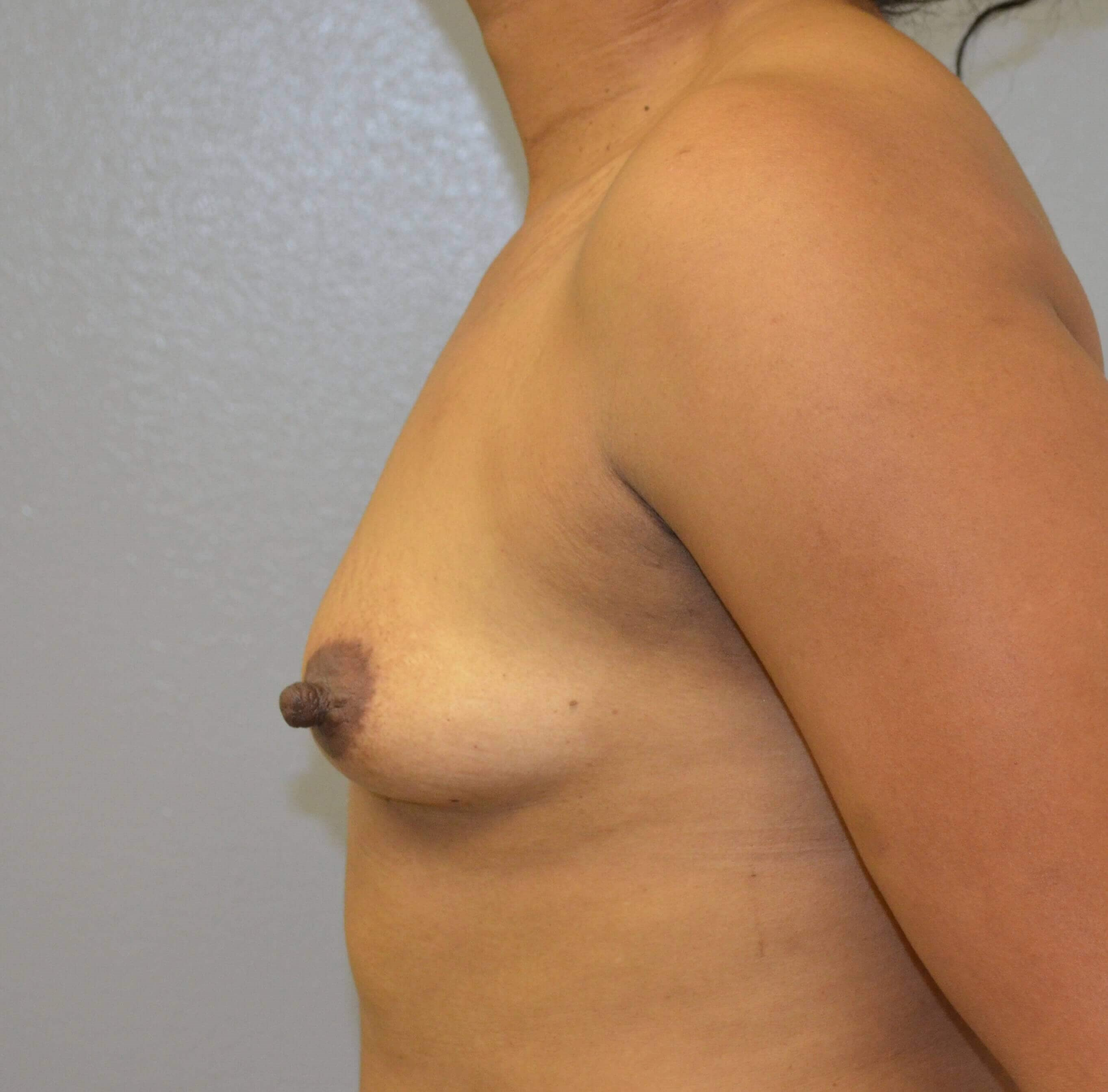 Breast Augmentation in Austin Before Lateral View 2
