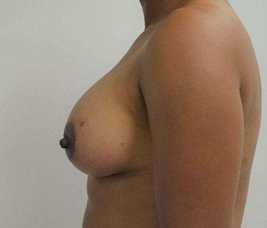 Breast Augmentation in Austin After Lateral View 2