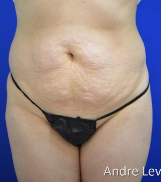 Lipoabdominoplasty Front View Before