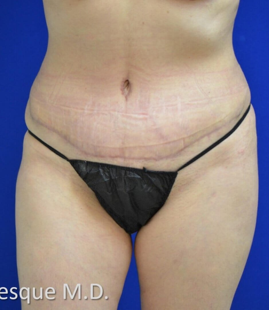 Lipoabdominoplasty Front View After