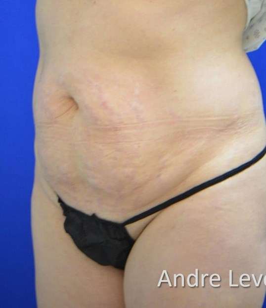 Lipoabdominoplasty Oblique Vie Before