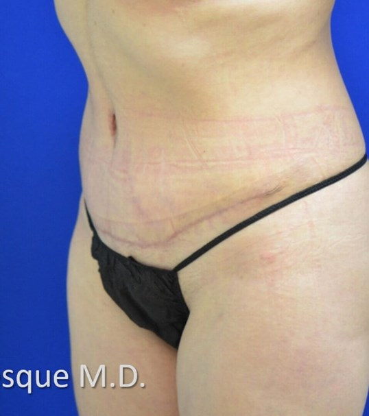 Lipoabdominoplasty Oblique Vie After