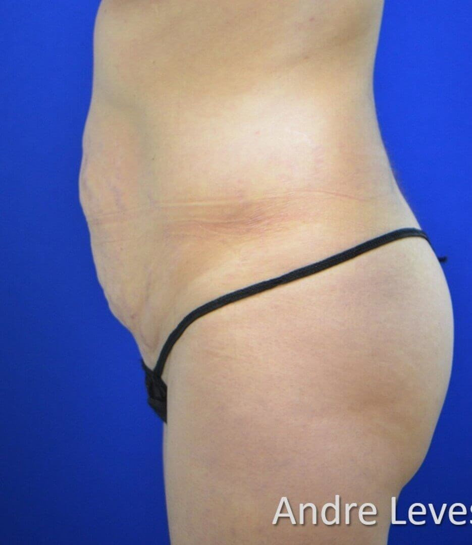 Lipoabdominoplasty Side View Before