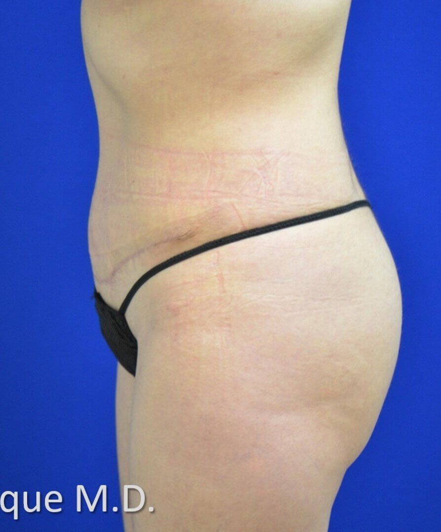 Lipoabdominoplasty Side View After